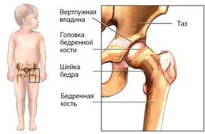 Дистония тазобедренных суставов рентген артрита коленного сустава
