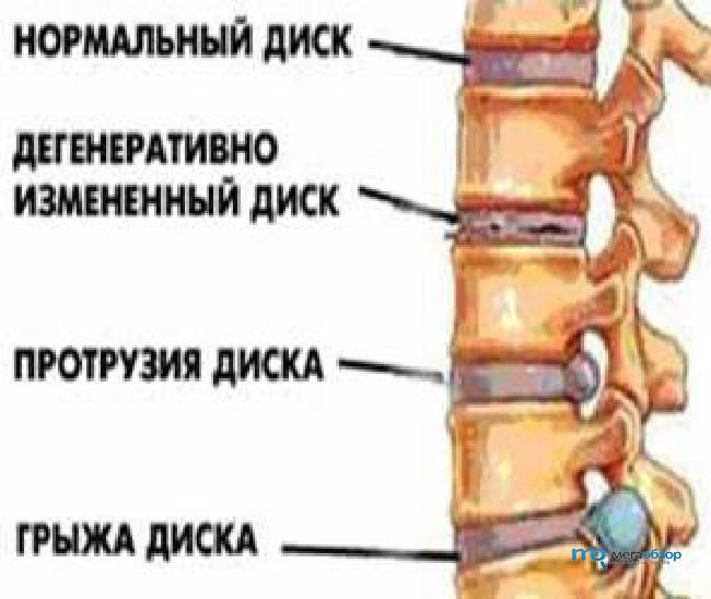 протрузия дисков позвоночника поясничного отдела лечение норме