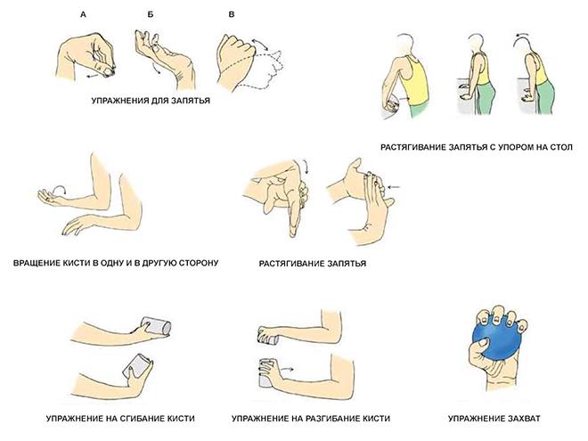 Лечение и профилактика артрита в Москве - Клиника ...