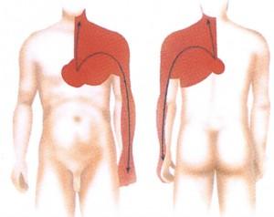 Какие лекарства от шейного остеохондроза