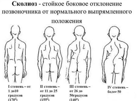Йога шейно грудной отдел татьяна