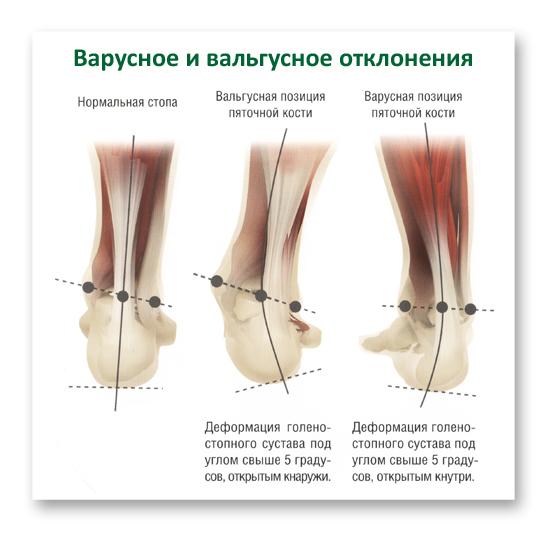 Советы по избавлению от косточки на ногах