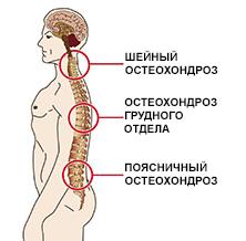 Как лечить шейный и грудной остеохондроз